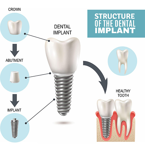 Structure of Dental Implants - Dental Implant Services