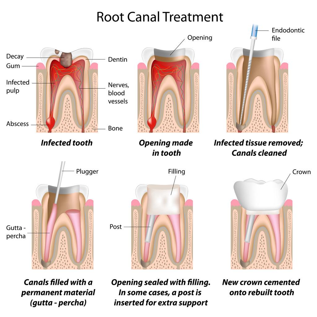 Endodontics - Root Canal Treatment